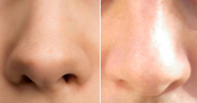nose3.jpg