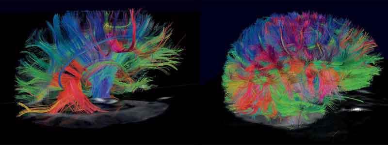첨단뇌신경섬유영상