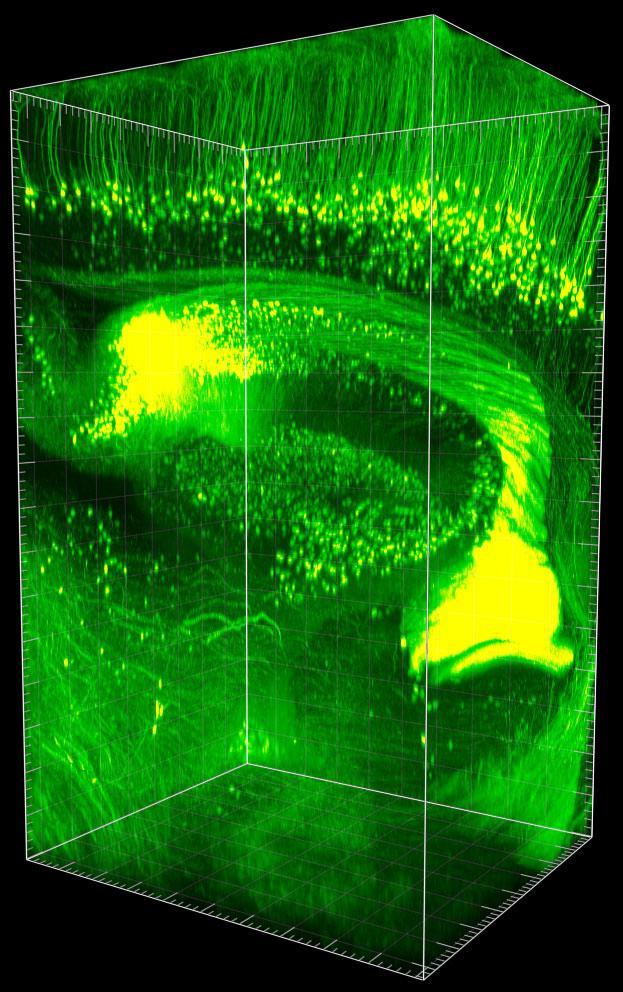 사이언스온 - '투명해진 뇌', 온전한 속을 드러내다
