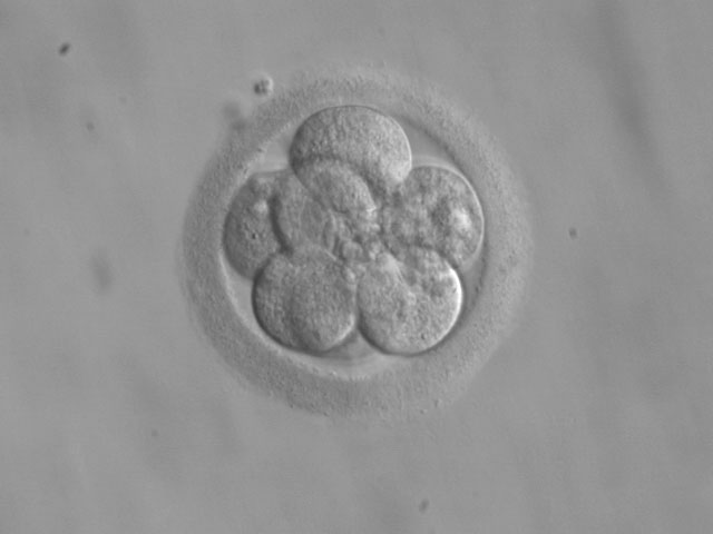 00embryo_8cell_wiki.jpg