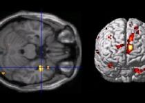 [연재] 증언대에 선 뇌